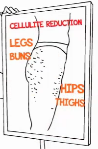 "4 cellulite ""trouble-zones"" diagram"