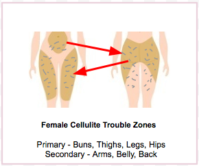 Female Cellulite Trouble Zones image